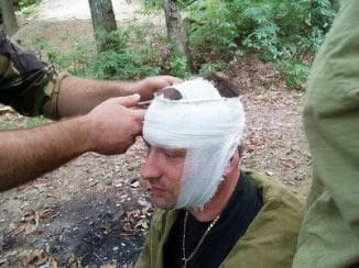 Помощь при ранении головы